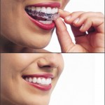 Invisalign in Patchoque, Coram, Sony Brook and Mt Sinai NY