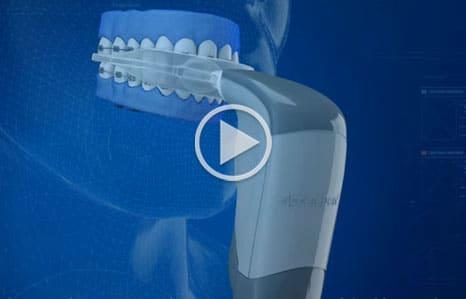 Acceledent Video Thumbnail CoolSmiles-Orthodontics-Medford-Port-Jefferson-NY
